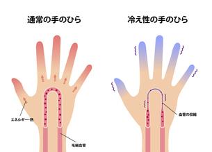 通常の手と末端冷え性の手 比較イラスト (冷え性の原因)のイラスト素材 [FYI04941560]