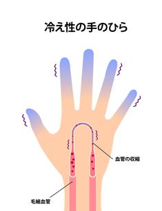 末端冷え性の手 イラスト (冷え性の原因)のイラスト素材 [FYI04941566]