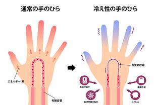 通常の手と末端冷え性の手 比較イラスト (冷え性の原因)のイラスト素材 [FYI04944155]