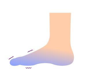 末端冷え性の足 イラスト (冷え性の原因)のイラスト素材 [FYI04944161]