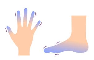 末端冷え性の手足 イラストセット (冷え性の原因)のイラスト素材 [FYI04944162]