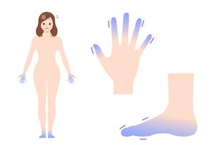 末端冷え性の手足・女性全身 イラストセット (冷え性の原因)のイラスト素材 [FYI04944163]