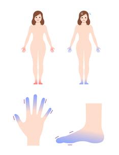 末端冷え性の手足・女性全身 イラストセット (冷え性の原因)のイラスト素材 [FYI04944164]