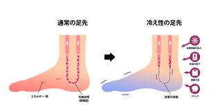 通常の足と末端冷え性の足 比較イラスト (冷え性の原因)のイラスト素材 [FYI04944174]