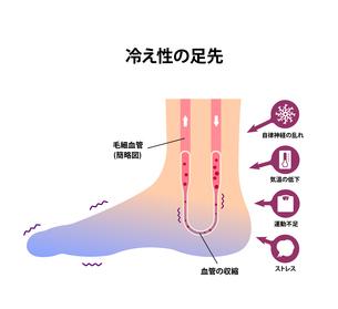 末端冷え性の足 イラスト (冷え性の原因)のイラスト素材 [FYI04944175]