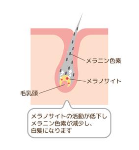 白髪 発生の仕組み・メカニズム 皮膚断面図イラストのイラスト素材 [FYI04944185]
