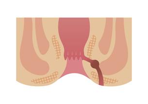 痔のタイプ・種類 (肛門断面図イラスト) / 痔ろうのイラスト素材 [FYI04945140]