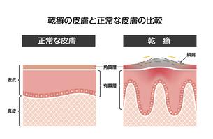 乾癬と健康な肌の比較 断面図イラストのイラスト素材 [FYI04945141]