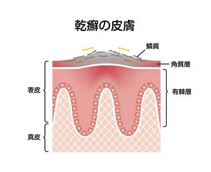 乾癬の肌 断面図イラストのイラスト素材 [FYI04945145]