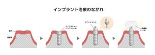 インプラント治療のながれ 断面図イラストのイラスト素材 [FYI04945160]