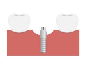 インプラント治療のながれイラスト / アバットメントの設置のイラスト素材 [FYI04945171]