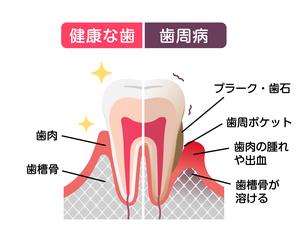 健康な歯と歯周病の歯の比較イラストのイラスト素材 [FYI04945179]