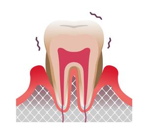 歯周病の歯の断面図イラスト (文字なし)のイラスト素材 [FYI04946487]