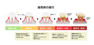 歯肉炎・歯周病のステージと症状イラストのイラスト素材 [FYI04946488]