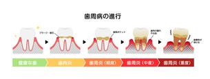 歯肉炎・歯周病のステージと症状イラストのイラスト素材 [FYI04946490]