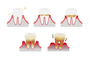歯肉炎・歯周病のステージと症状イラストセットのイラスト素材 [FYI04946495]
