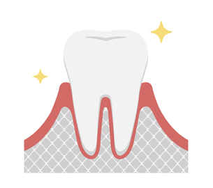 歯肉炎・歯周病のステージと症状イラスト / 健康な歯のイラスト素材 [FYI04946496]