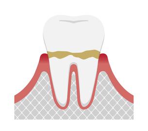 歯肉炎・歯周病のステージと症状イラスト / 歯肉炎のイラスト素材 [FYI04946497]