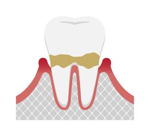 歯肉炎・歯周病のステージと症状イラスト / 軽度の歯周炎のイラスト素材 [FYI04946498]