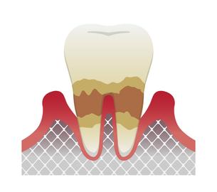 歯肉炎・歯周病のステージと症状イラスト / 中度の歯周炎のイラスト素材 [FYI04946499]