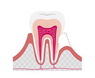 歯の知覚過敏 原因と仕組み 断面図イラスト / 文字なしのイラスト素材 [FYI04946503]