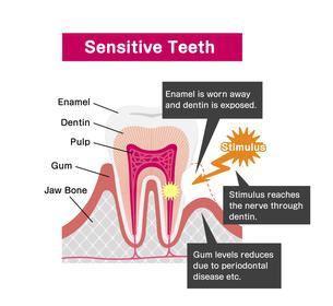 歯の知覚過敏 原因と仕組み 断面図イラスト / 英語のイラスト素材 [FYI04946504]