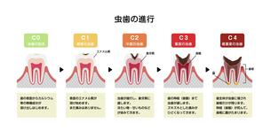虫歯の進行と症状 イラストのイラスト素材 [FYI04946508]