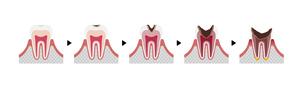 虫歯の進行と症状 イラストのイラスト素材 [FYI04946511]
