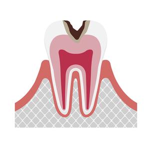 虫歯の進行と症状 イラスト / C2・中度の虫歯のイラスト素材 [FYI04946517]
