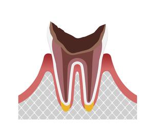 虫歯の進行と症状 イラスト / C4・最重度の虫歯のイラスト素材 [FYI04946519]