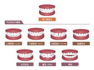 歯並び・歯列・不正咬合の種類 イラストセットのイラスト素材 [FYI04946520]