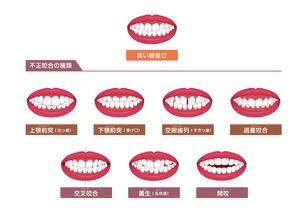 歯並び・歯列・不正咬合の種類 ベクターイラストセットのイラスト素材 [FYI04946524]