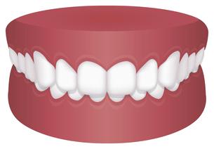 歯並び・歯列・不正咬合の種類 イラスト / 過蓋咬合のイラスト素材 [FYI04946529]