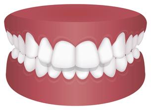 歯並び・歯列・不正咬合の種類 イラスト / 上顎前突(出っ歯)のイラスト素材 [FYI04946530]