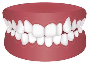 歯並び・歯列・不正咬合の種類 イラスト / 叢生(乱杭歯)のイラスト素材 [FYI04946531]
