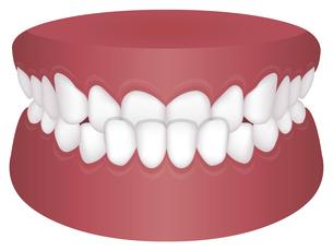 歯並び・歯列・不正咬合の種類 イラスト / 下顎前突(受け口)のイラスト素材 [FYI04946532]