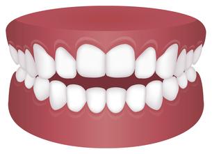 歯並び・歯列・不正咬合の種類 イラスト / 開咬のイラスト素材 [FYI04946533]
