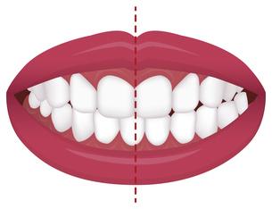 歯並び・歯列・不正咬合の種類 イラスト / 交叉咬合のイラスト素材 [FYI04946538]
