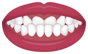 歯並び・歯列・不正咬合の種類 イラスト / 下顎前突(受け口)のイラスト素材 [FYI04946539]