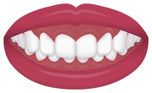 歯並び・歯列・不正咬合の種類 イラスト / 過蓋咬合のイラスト素材 [FYI04946540]