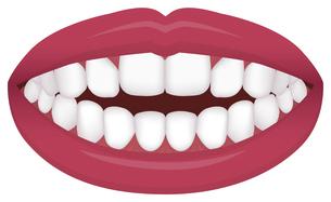 歯並び・歯列・不正咬合の種類 イラスト / 開咬のイラスト素材 [FYI04946542]
