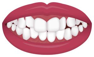 歯並び・歯列・不正咬合の種類 イラスト / 叢生(乱杭歯)のイラスト素材 [FYI04946543]