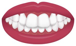 歯並び・歯列・不正咬合の種類 イラスト / 上顎前突(出っ歯)のイラスト素材 [FYI04946544]