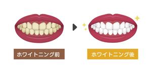 歯のホワイトニング(ホームホワイトニング)ビフォアアフター イラストのイラスト素材 [FYI04950034]