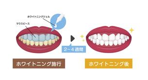 歯のホワイトニング(ホームホワイトニング)ビフォアアフター イラストのイラスト素材 [FYI04950040]