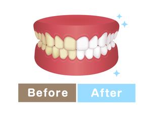 歯のホワイトニング (黄ばんだ歯と白い歯) / ビフォアアフター イラストのイラスト素材 [FYI04950049]