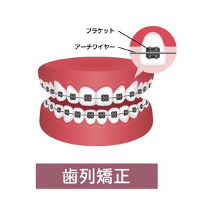 歯列矯正・歯の矯正 イラストのイラスト素材 [FYI04950055]