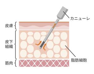 脂肪吸引法 皮膚断面図イラスト / 美容・ダイエットのイラスト素材 [FYI04951592]