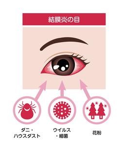 結膜炎の目 イラスト(結膜炎の原因)のイラスト素材 [FYI04954319]