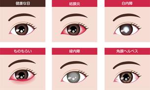目・眼の病気 イラストセット (結膜炎・白内障・緑内障 etc.)のイラスト素材 [FYI04954325]